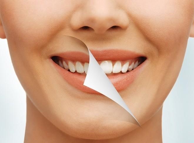 rüyada dişlerin döküldüğünü görmek 2